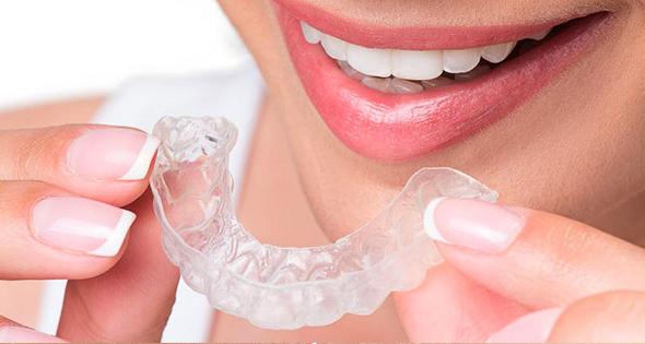 Chirurgie dentaire : Gouttières Invisalign, esthétiques et quasiment invisibles