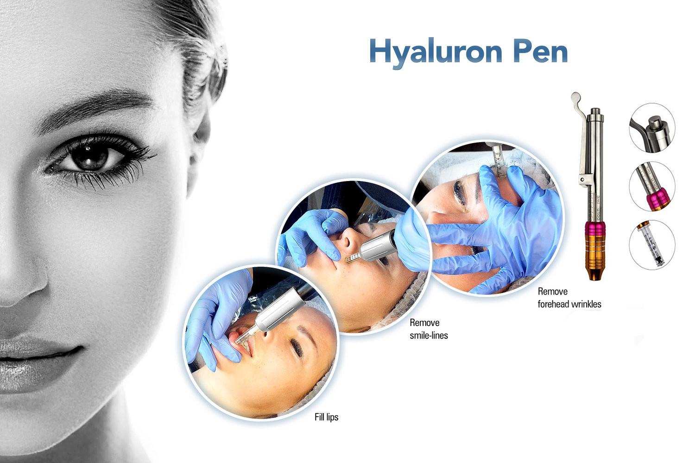 Injections PRP « Plasma Pen » et « Hyaluron Pen » : les liftings nouvelle génération