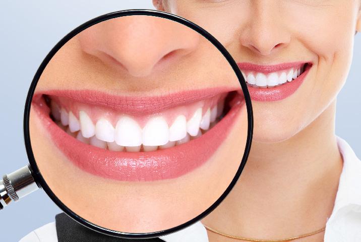 Santé dentaire : 5 aliments qui empêchent votre sourire éblouissant