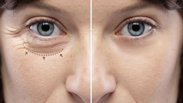 La chirurgie esthétique : Les standards beauté